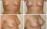 anatomical-breastimplants-mentor