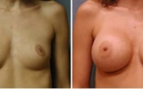 breast-augmentation2