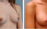 breast-augmentation4