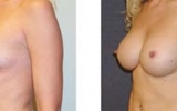 breast-enlargement25