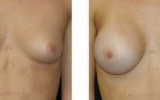 breast-enlargement27