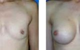 breast-enlargement28