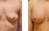 breast-enlargement32