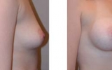 breast-implants17