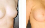 breast-implants19