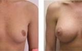 breastimplant21