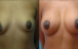 augmentation-breast-lift