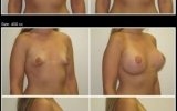 breast-augmentation-moderate-profile