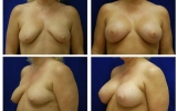 breast-implants-breast-lift-43