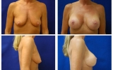 breast-implants-breast-lift-b-d