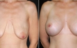 breast-implants-breast-lift