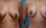 breast-implants-lift