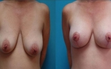 breast-implants-with-breast-lift
