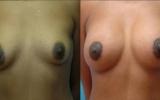 augmentation-breast-lift