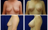 breast-implants-breast-lift-32