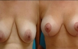 breast-lift-augmentation-implants