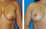 breast-lift-17