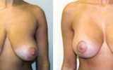 breast-lift-18