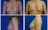 breast-lift-39