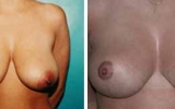breast-lift-4