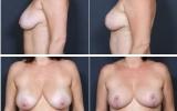 breast-lift-mastopexy3
