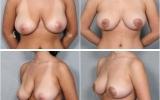 breast-lift-mastopexy6
