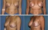 breast-lift-mastopexy8