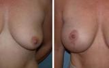 breast-uplift-9