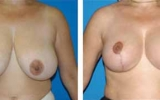 breast-reduction-5