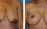 breast-reduction-7