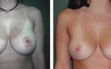 breast-reduction-8