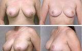 breast-reduction4