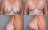 breast-reduction5