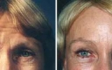 forehead-lift-10