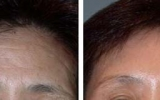 forehead-lift-7