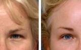 forehead-lift-8