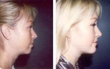chin-augmentation4