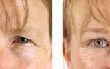 eyelid-surgery-2