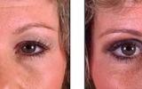 eyelid-surgery-4