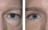 eyelid-surgery-6