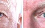 eyelid-surgery-7