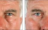 lower-blepharoplasty