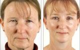 upper-blepharoplasty-front