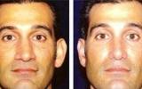 ear-correction-1