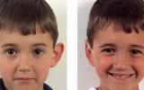 ear-surgery-8
