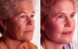 face-lift-chemical-peeling