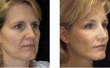 face-lift2