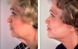 facelift-chin-line