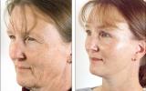 facelift-eyelid-surgery