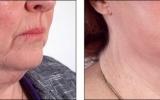 facelift-neck